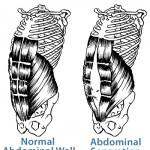 diastasis-recti, abdominal wall separation