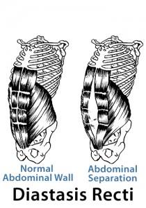 postnatal diastasis-recti, abdominal wall separation